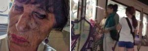 donna picchiata da rom
