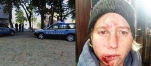 Ferrara, italiana di 32 anni pestata a sangue e rapinata da 5 africani: ecco come l'hanno ridotta (foto)